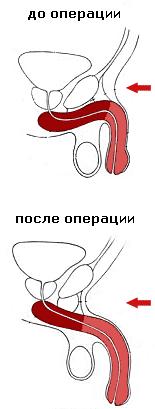 Технология операции на пенисе