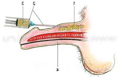 Хирургическое увеличение ширины полового члена