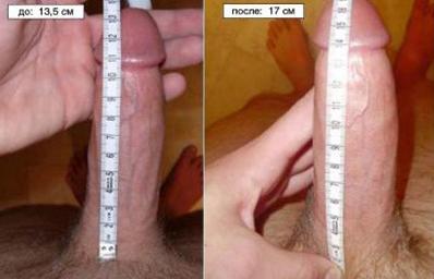экстендер фото до и после